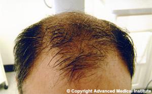 Hair Loss Specialist Boston Ma