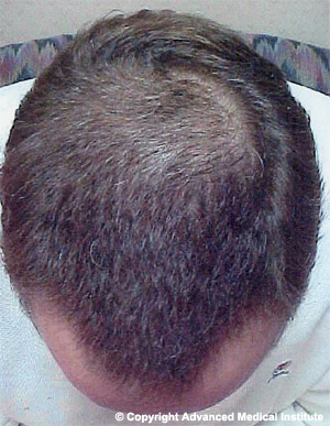 Hair Loss Specialist Boston Ma